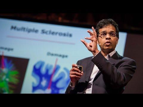 シッダールタン・チャンドラン: 損傷した脳は自力回復できるか?