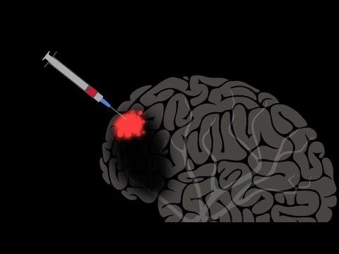 ジョスリン・ブロック: 脳が自己修復する可能性とその補助について