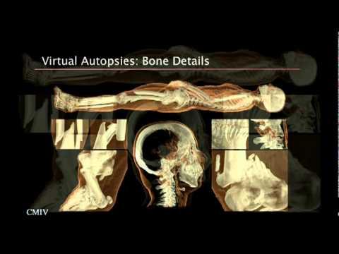 アンダース・インナーマン: 爆発的に増大する医療データの視覚化