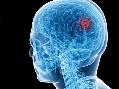ヨアヴ・メダン: 超音波手術―切らずに治療する